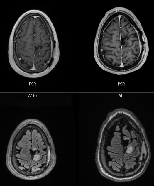 9-25-2018 MRI tumor images comparing 7-30-2018